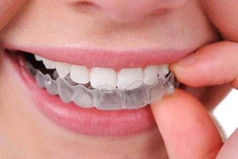 Aparelho Dentario Transparente Preco Ideal Odonto