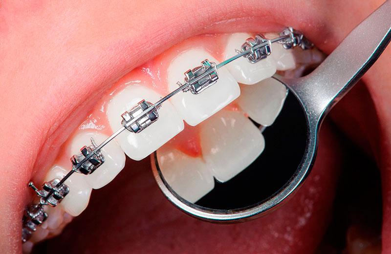 Aparelho Ortodontico Infantil Ideal Odonto