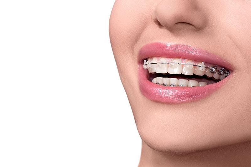 Aparelho Para Tirar Tartaro Dos Dentes Ideal Odonto