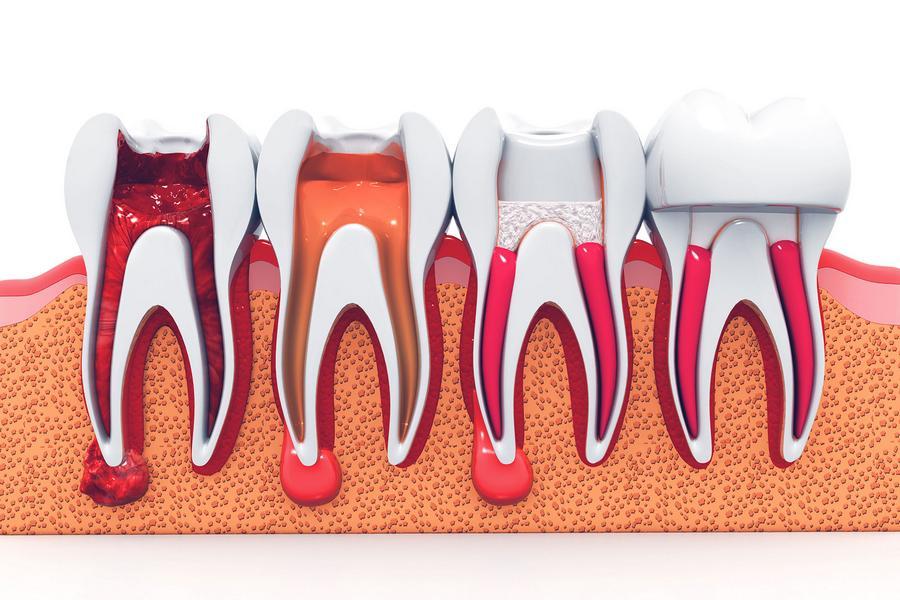 Como Tratar O Canal Do Dente Doendo Ideal Odonto