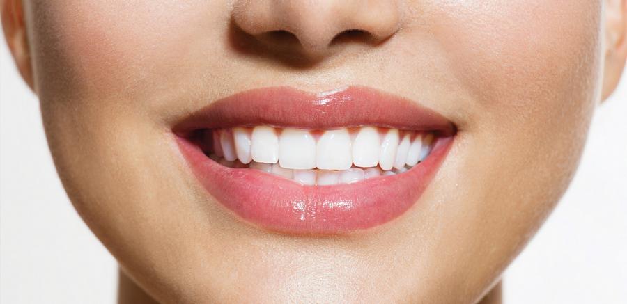 Como Deixar Os Dentes Branco Ideal Odonto