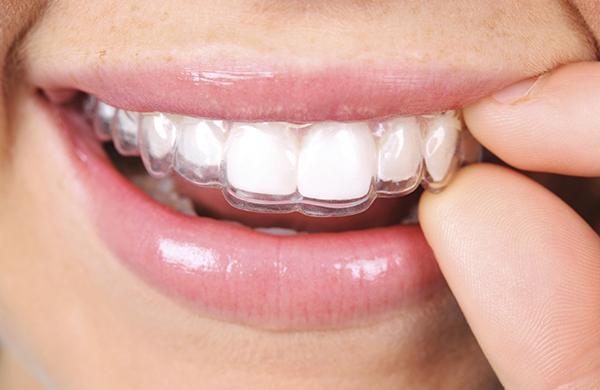 Como Tirar Aparelho Dos Dentes Ideal Odonto