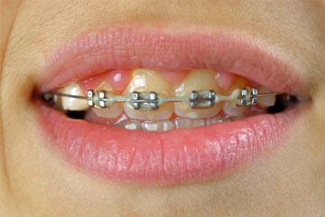Dentes Amarelados Com Aparelho Ideal Odonto