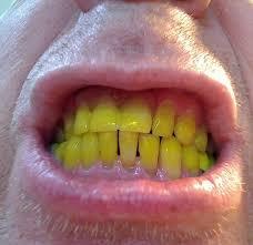 Dentes Amarelados Como Clarear Ideal Odonto
