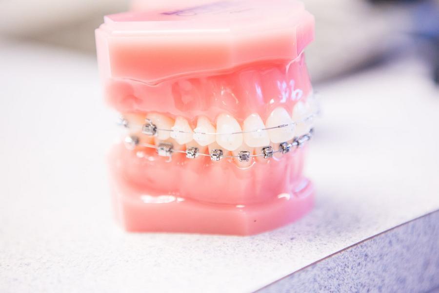 Dentista Aparelho Ortodontico Ideal Odonto