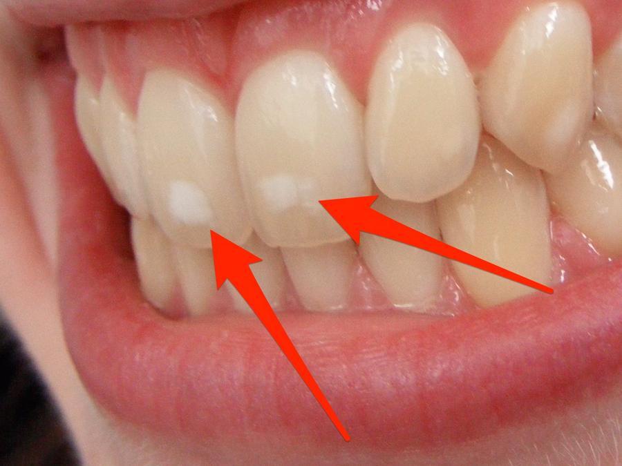 Mancha Branca No Dente Apos Clareamento Ideal Odonto