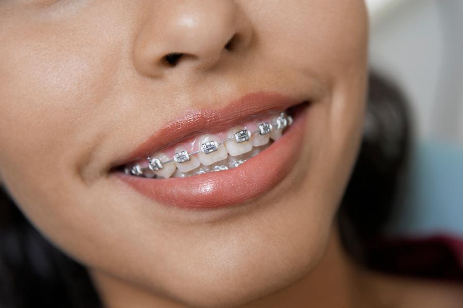 Ortodontia Aparelho Fixo Ideal Odonto