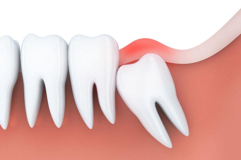 Quanto Custa Para Extrair O Dente Do Siso Ideal Odonto