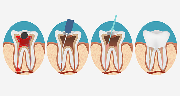 canal do dente doendo