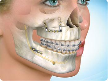 cirurgia ortognática muda o nariz