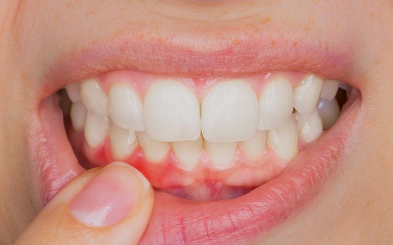como desinchar o rosto por causa do dente inflamado
