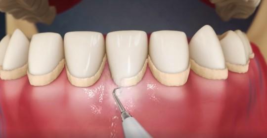 como evitar tártaro nos dentes
