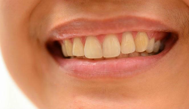 como tirar amarelado dos dentes