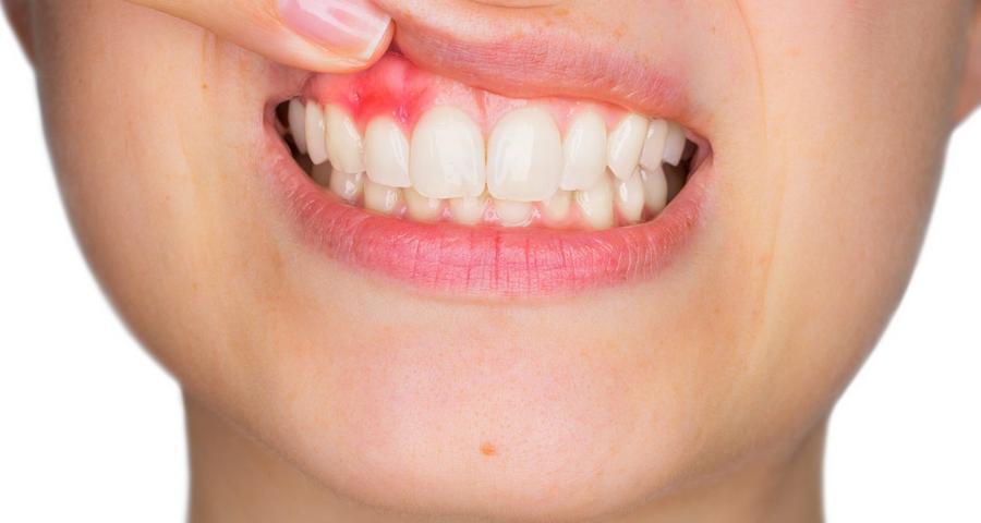 como tirar pus do dente inflamado