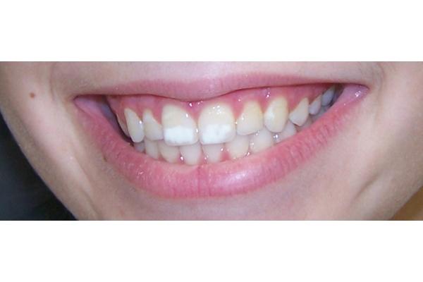 dente com mancha amarela