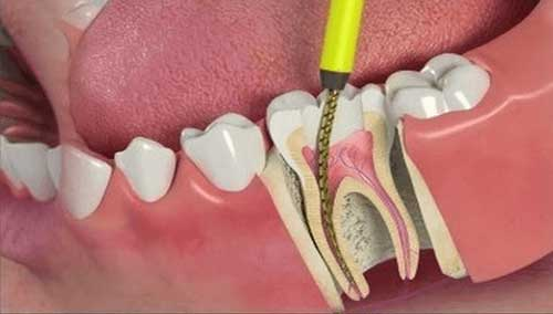 dente com tratamento de canal pode doer