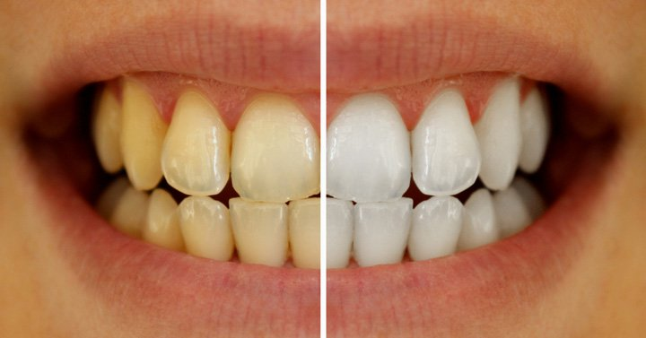 dentes com placas amarelas
