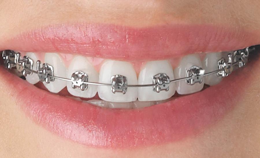 dentista aparelho ortodôntico