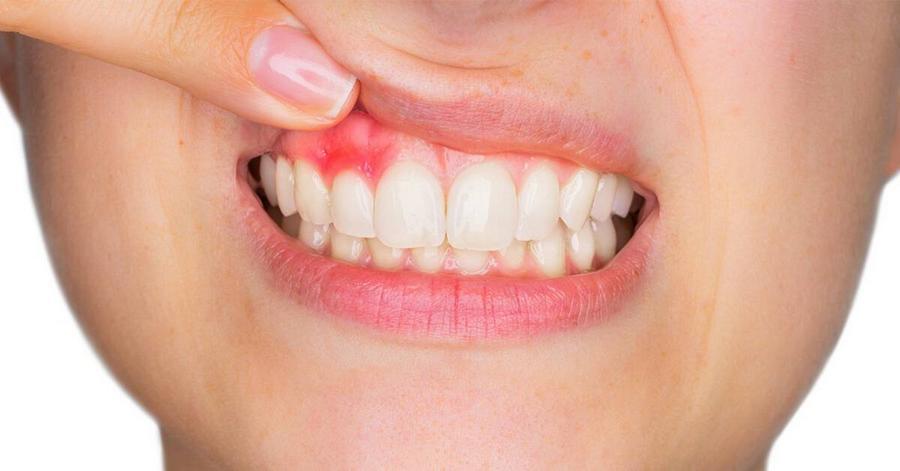 dor na gengiva do dente