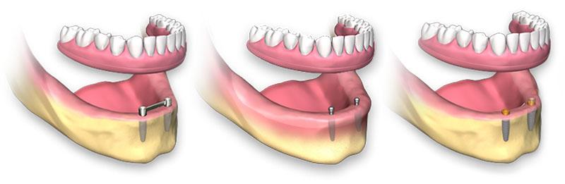 plano de saúde odontológico que cobre implantes