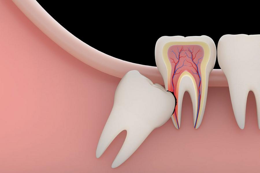 quanto custa para extrair o dente do siso
