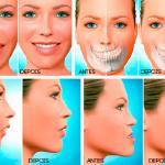 cirurgia buco maxilo facial especialização
