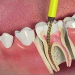 dentista canal preço