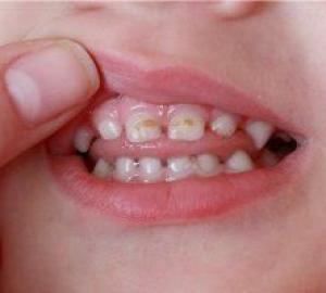 Cárie no dente da frente como tratar