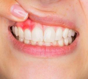 Caroço na gengiva acima do dente