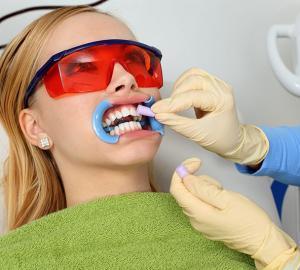 Como tirar placa do dente