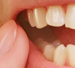 Como tratar dente inflamado