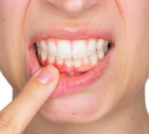 Dente siso inflamado sintomas