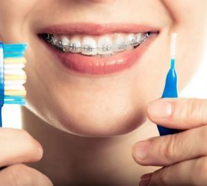 Mancha no dente da frente