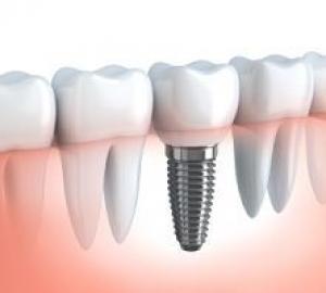 Plano que cobre implante dentário
