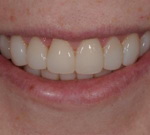 Restauração dente da frente