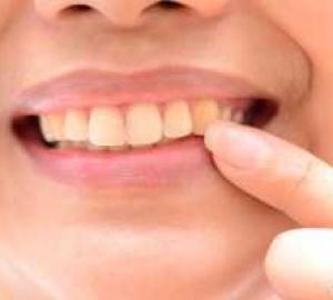 Tirar amarelo dos dentes