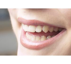 Tirar mancha de nicotina dos dentes