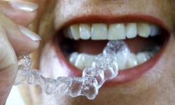 aparelho dentário transparente preço