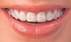 aparelho odontológico de porcelana