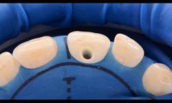 Canal no dente: como é realizado o tratamento?