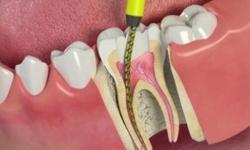 Tratamentos de canal odontológico: como funciona?