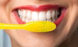 como clarear os dentes em uma semana