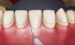 Dicas de como evitar tártaro nos dentes