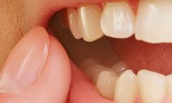 Como tratar dente inflamado e evitar doenças periodontais?