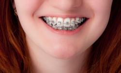 dente aparelho
