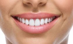 enxerto para implante dentário