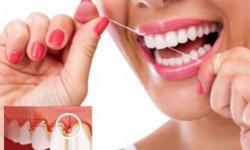 Gengivite: sintomas e tratamento