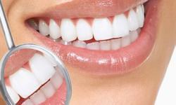 limpeza de dente preço