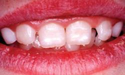 mancha branca dente bebe
