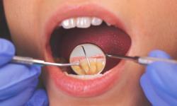 Periodontite: sintomas, tratamento e prevenção